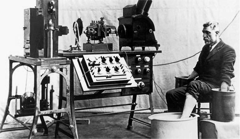 Old-string-galvanometer-electrocardiograph-showing-the-big-machine-with-the-patient.png