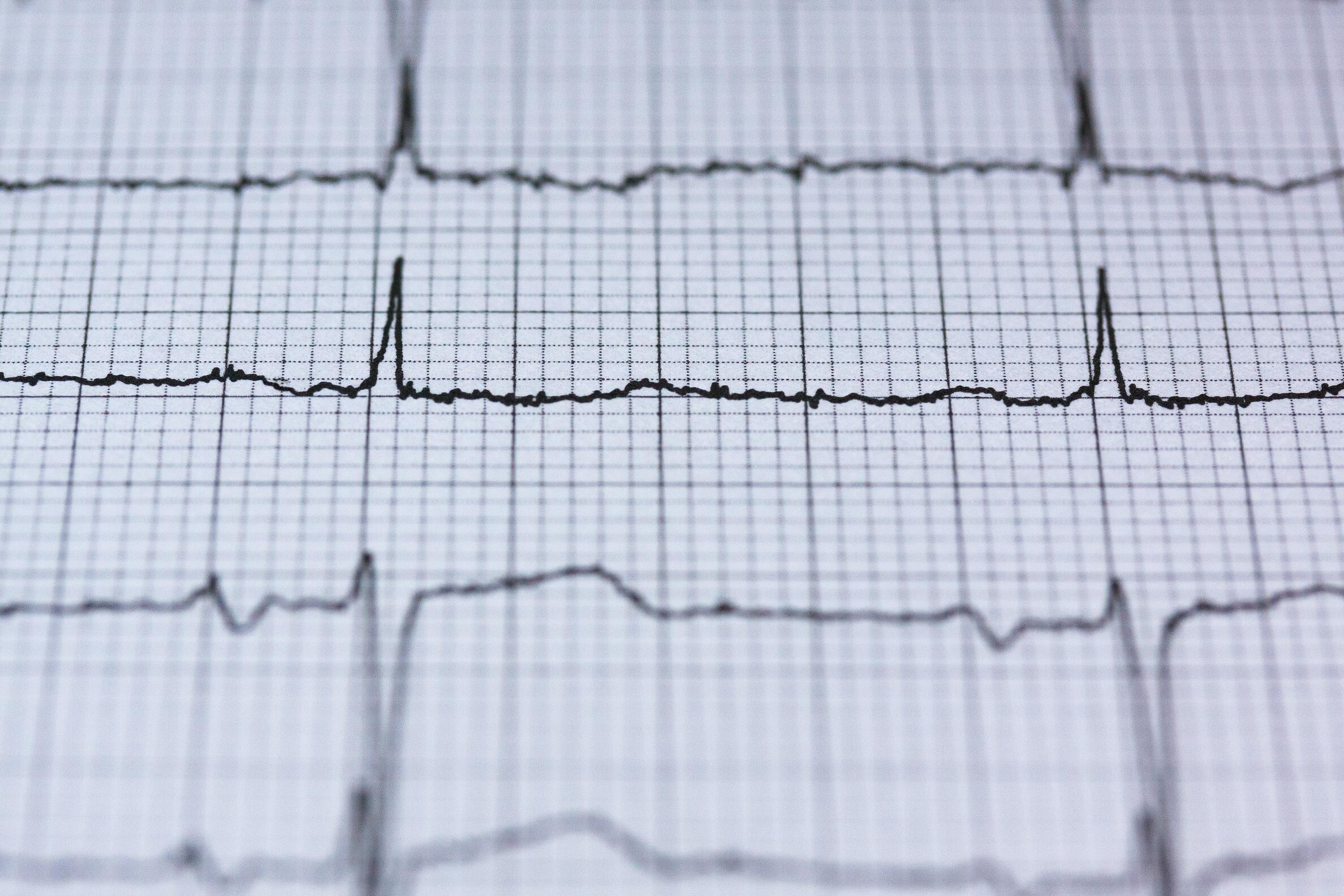 EKG technician job outlook & opportunities
